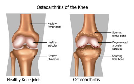 Illustration of the knee