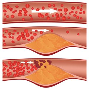 Cholesterol plaque in artery (atherosclerosis) illustration NutriShield Multi Vitamins and Minerals